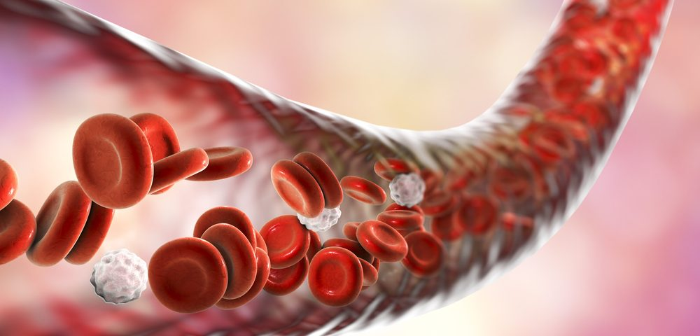 Changes in Circulating Immune Cells in AAV Linked to Kidney Damage