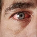 ANCAs and eye inflammation