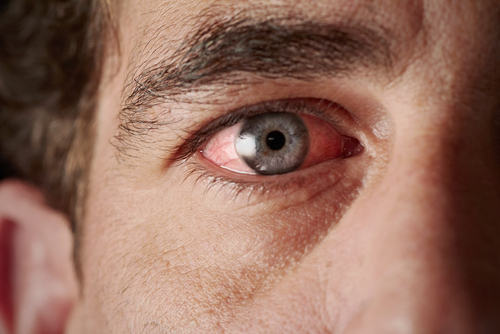 Specific Eye Inflammation Seen as Early Sign of Granulomatosis with Polyangiitis in Case Study