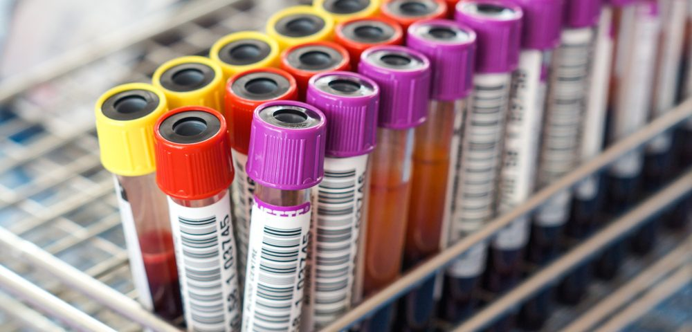 FDA Clears 2 PerkinElmer's Assays to Help Diagnose ANCA Vasculitis