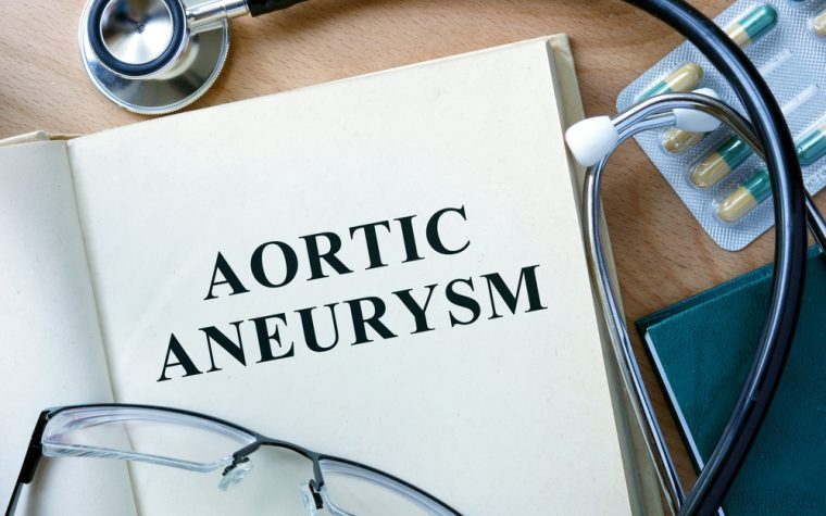 Aortic Aneurysm case report