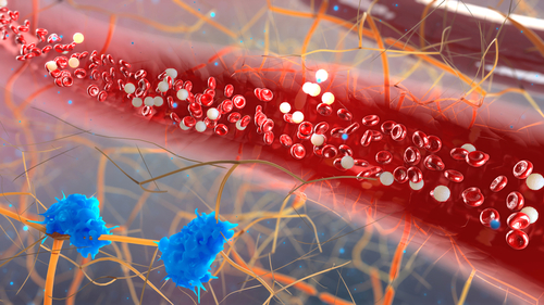 Elevated Microparticle Levels in AAV Patients Mark Higher Risk of Blood Clots, Study Suggests