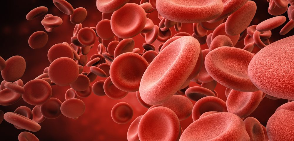 AAV Patients Have Greater Risk for Cardiovascular Disease, Venous Thromboembolism, Study Finds