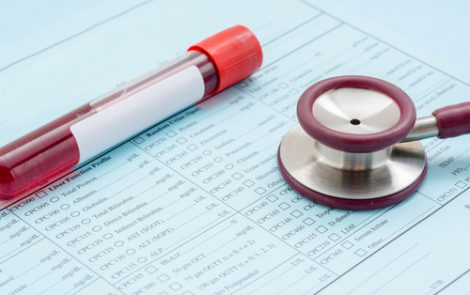 B-cells Marker Levels May Predict Complete Responses to Rituximab in GPA, MPA