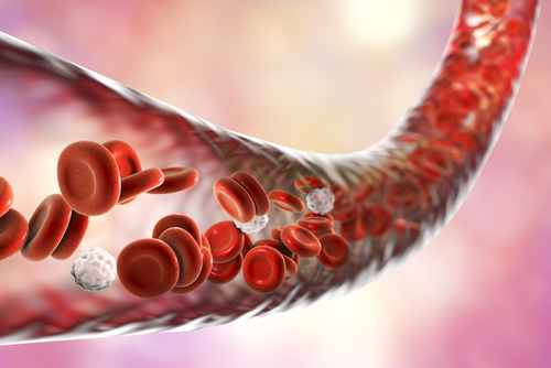 Antiphospholipid Antibodies Linked to Risk of Blood Clots in AAV Patients