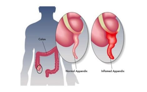 ANCA-Associated Vasculitis can Result in Appendicitis Without Other Systemic Symptoms, Case Report Shows