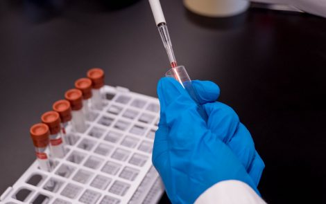 High Relapse Risk Found in AAV Patients With Recurrent or Persistent ANCA Antibodies